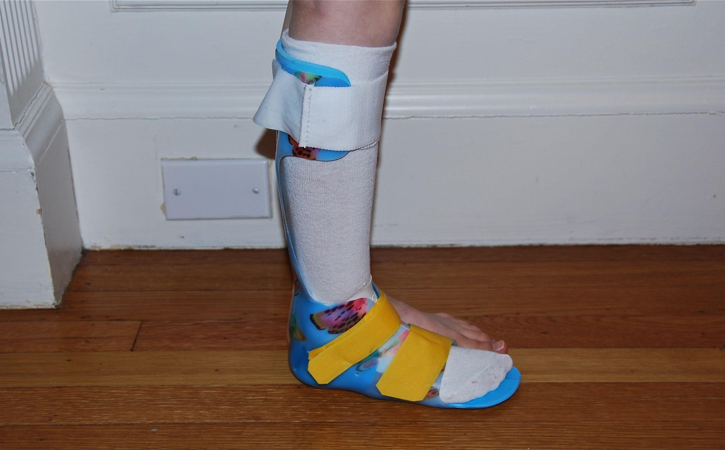 cerebral Palsy leg brace.